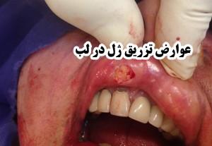 عوارض تزریق ژل در لب