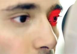 csr بیماری چشمی