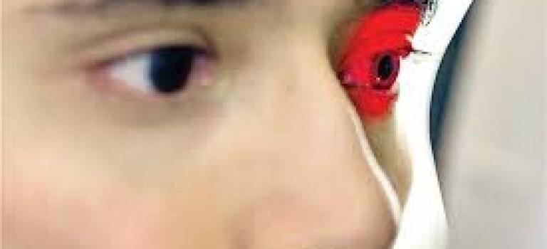 بیماری چشمی csr
